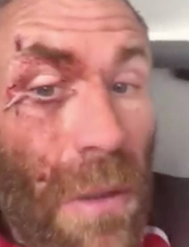 Damian Browne shows his injuries.